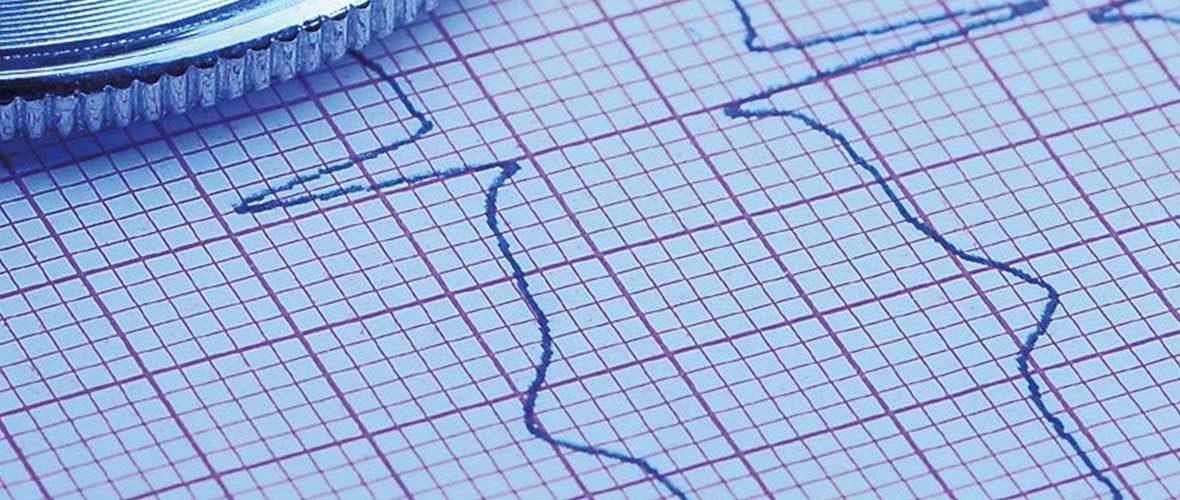 """6e Congrès national de cardiologie dédié à """"l'arrêt cardiaque subit"""""""